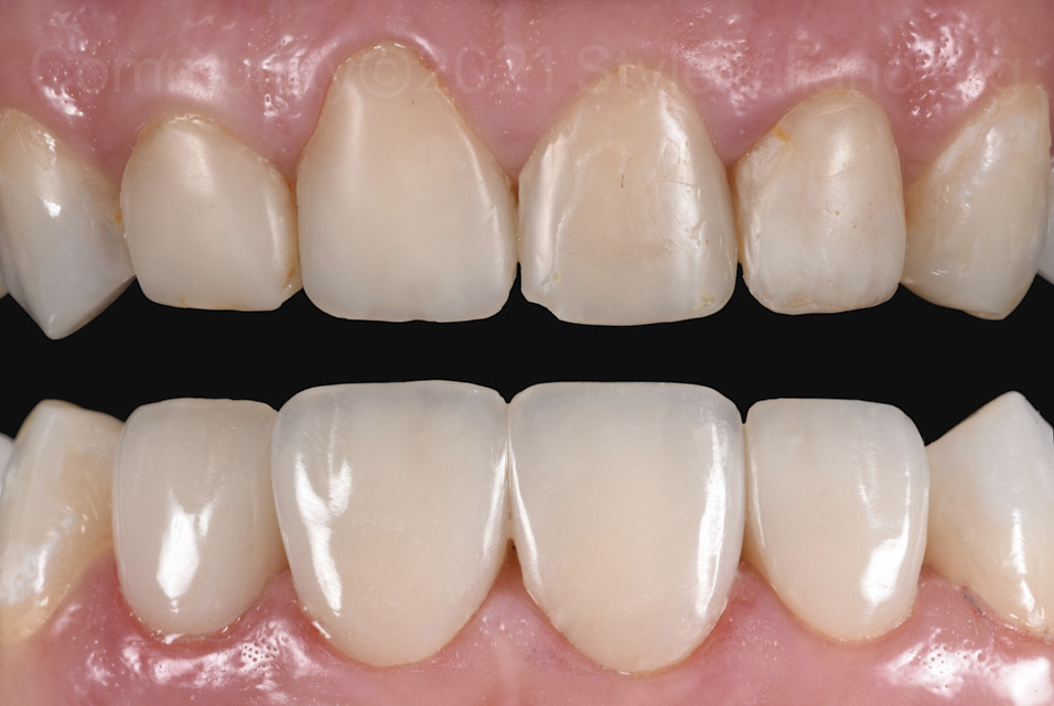 before and after gingivoplasty and direct veneering