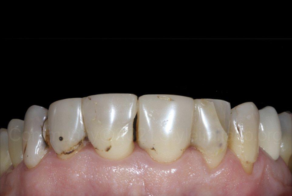 old defective composite restorations on upper teeth