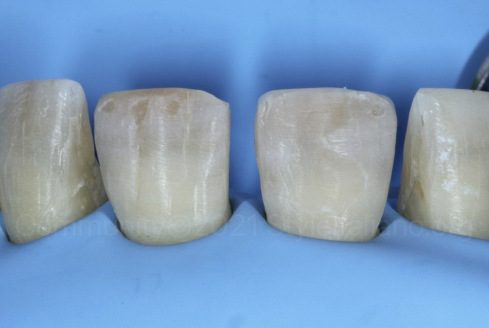 prepared incisors after removing old restorations