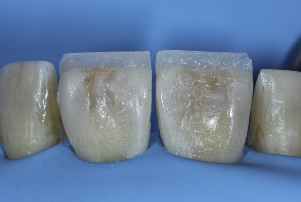 Composite palatal walls and outline