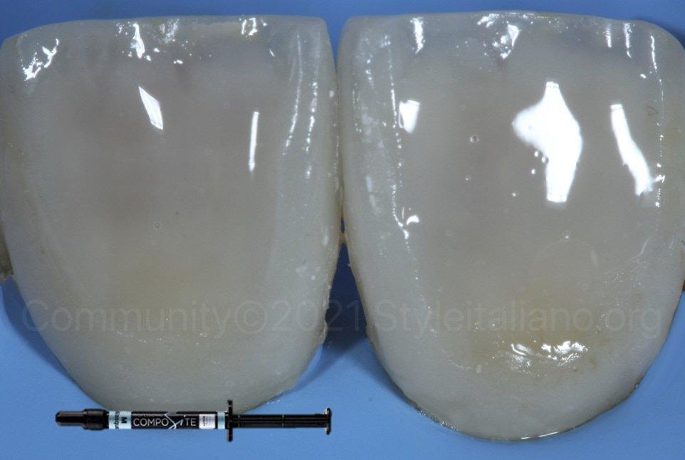 layering of composite resin in anterior veneering