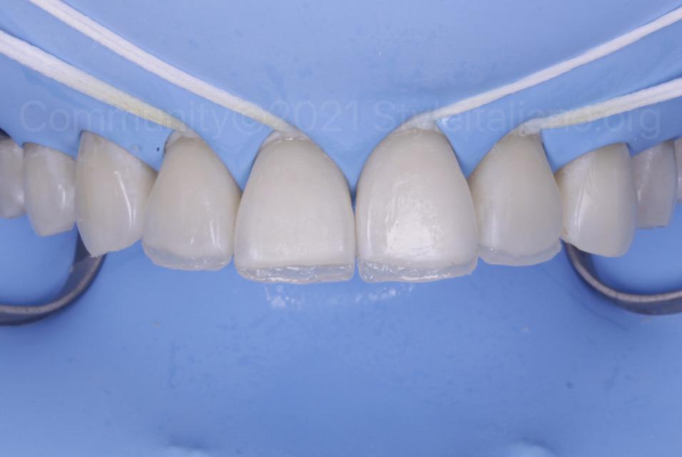 palatal incisal composite build up