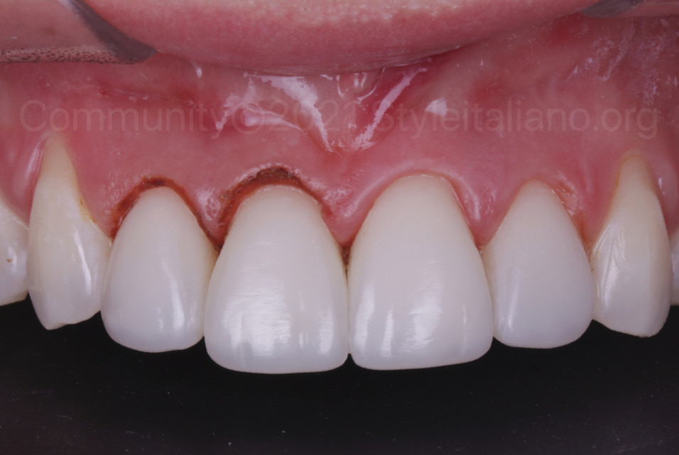 incisors after composite restoration and gingivectomy