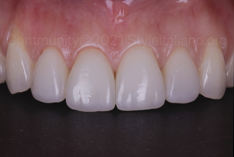 shiny and seamless direct tooth restorations