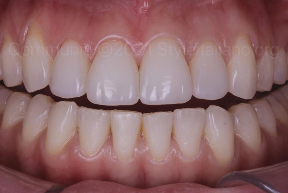 intraoral view of restored upper teeth