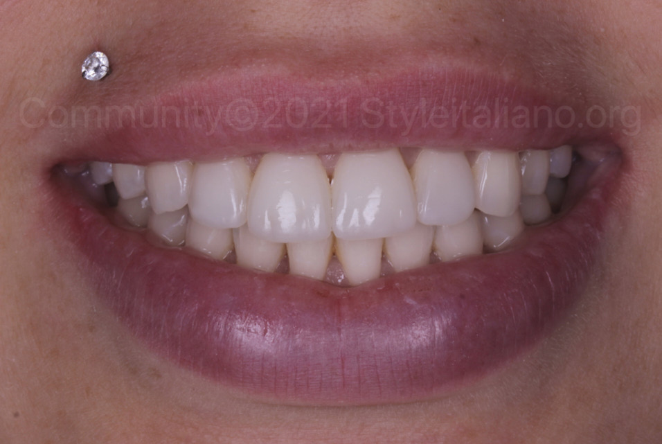 smile of patient after incisal restoration