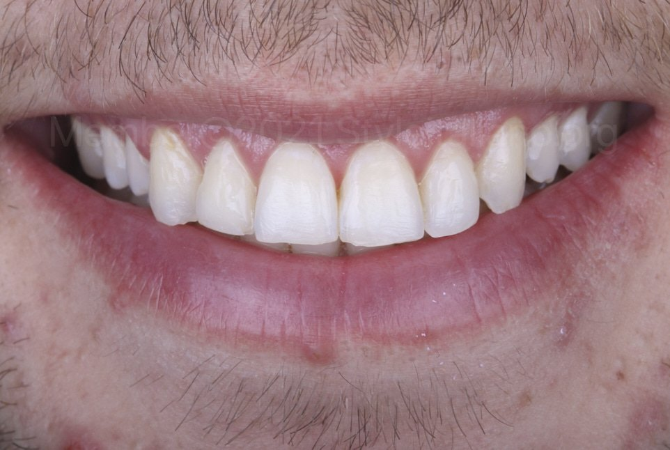 smile with worn incisors