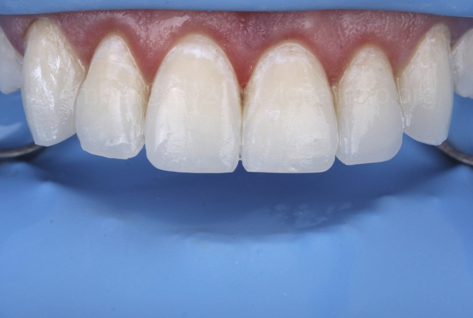 layered incisal edges with embrasures
