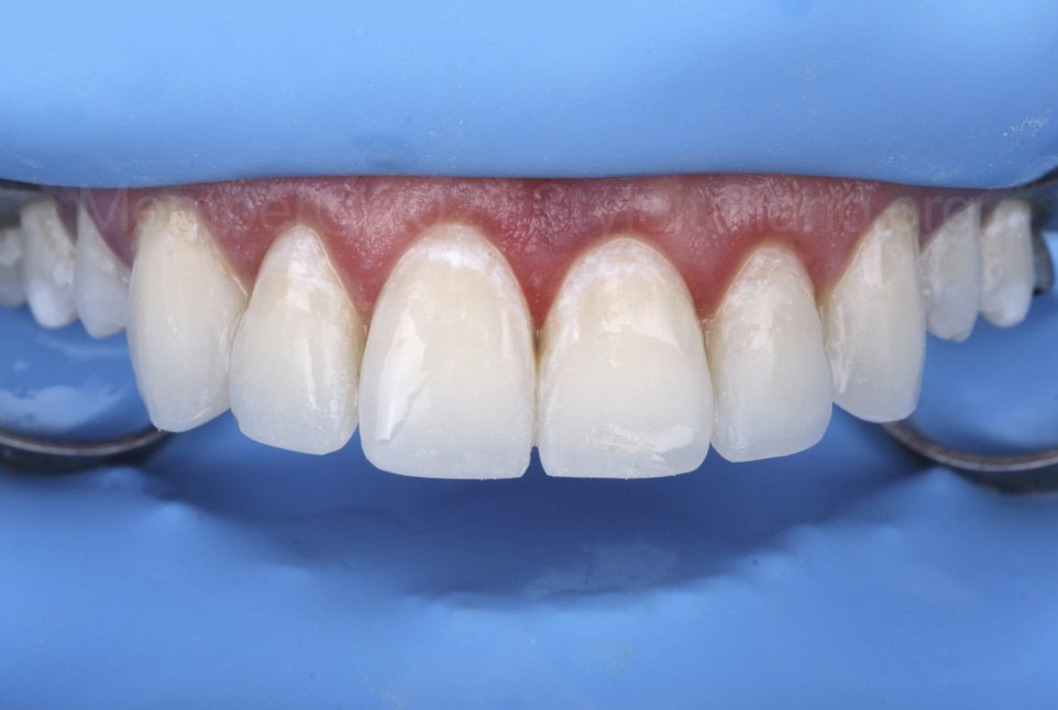 incisal restorations after finishing