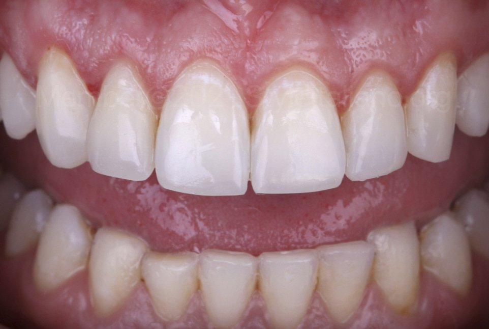 finished incisal restorations on front teeth