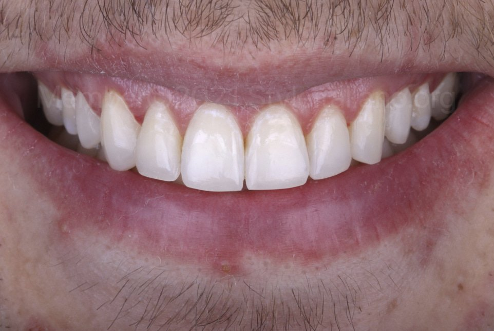 smile of patient after composite restoration of incisors