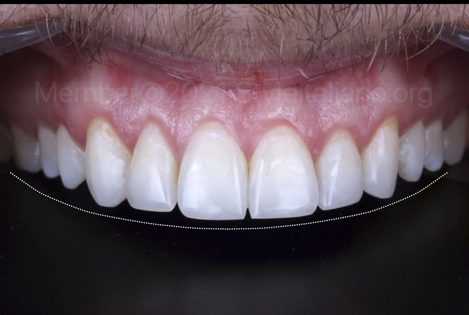 graphic lip line check for incisal anatomy