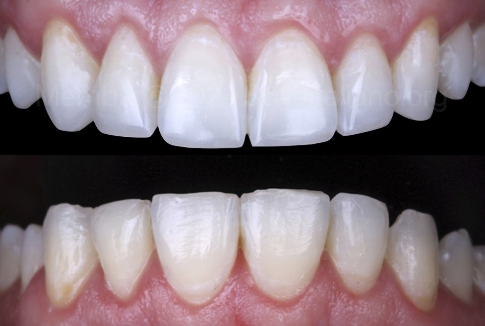 before and after incisal restorations