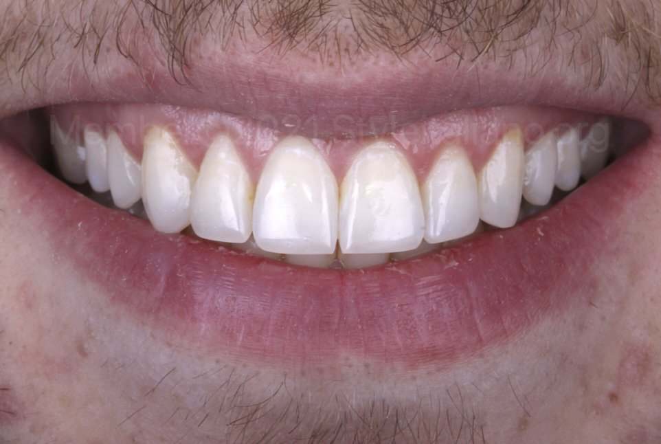 smile after conservative enhancement of front teeth