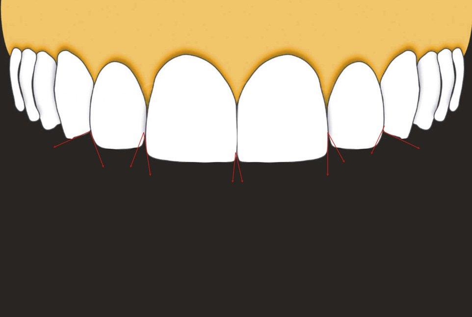 illustration of incisal embrasures