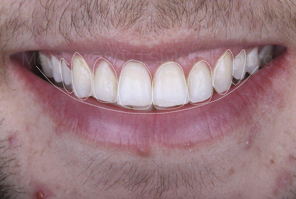smile design on photograph