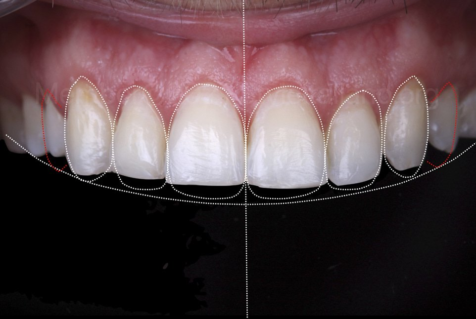 intraoral smile design