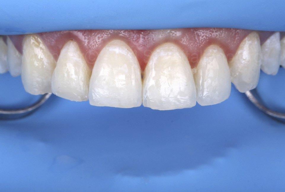 bonded enamel before composite layering