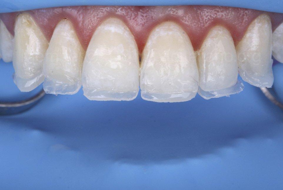 palatal shells for incisal lengthening