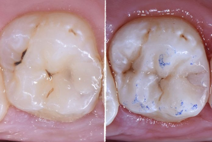 before and after composite filling style italiano styleitaliano