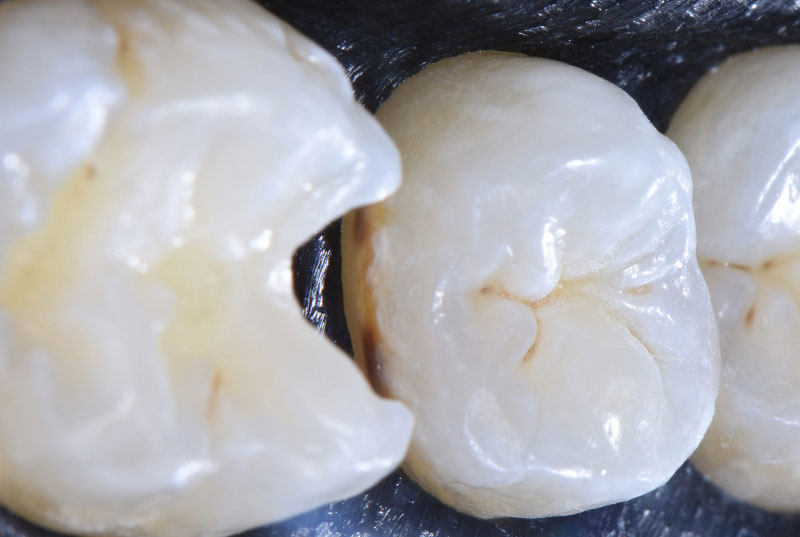 caries on distal premolar styleitaliano style italiano