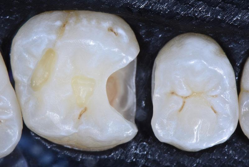 clean cavities style italiano styleitaliano