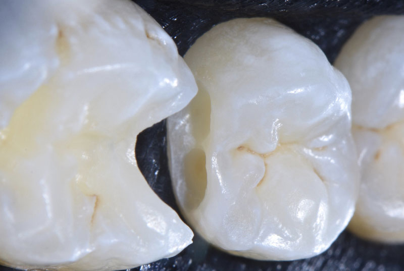 clean distal cavity on upper premolar style italiano styleitaliano