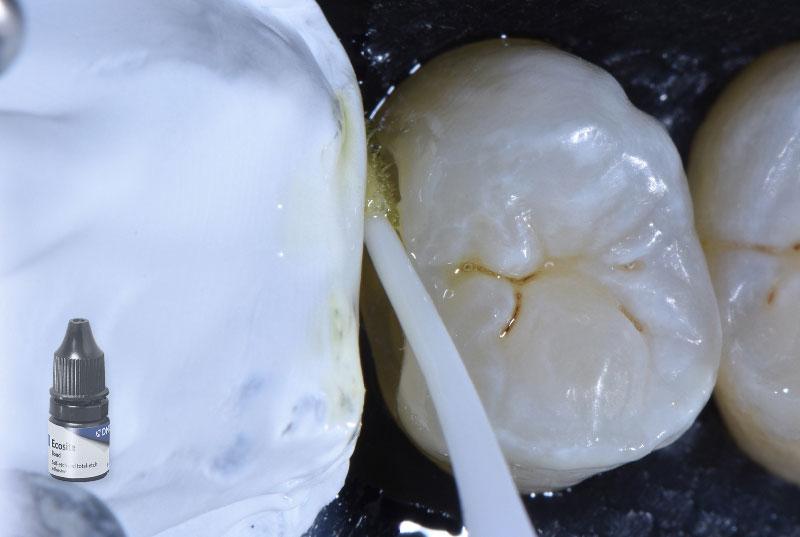 bonding application in distal cavity styleitaliano style italiano