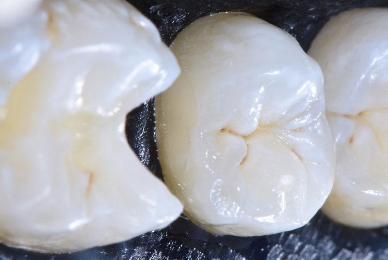 distal filling in adjacent cavities style italiano styleitaliano