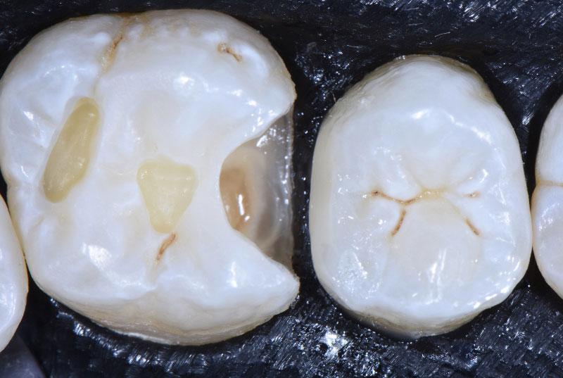 second class cavity on upper molar style italiano styleitaliano