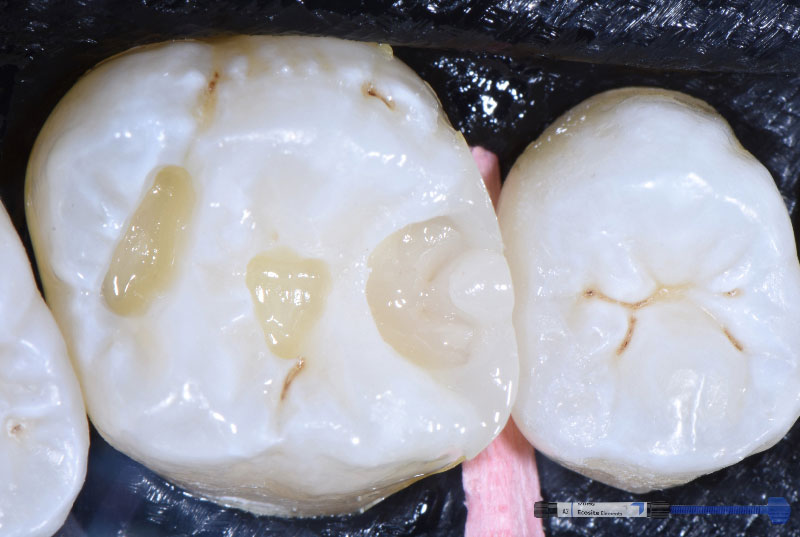 layering of composite resin in cavity style italiano styleitaliano