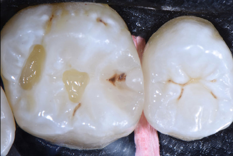 staining of sulcus for natural-looking filling style italiano styleitaliano