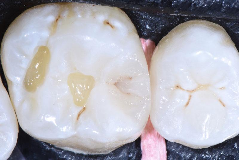 multiple cavities on upper molar styleitaliano style italiano