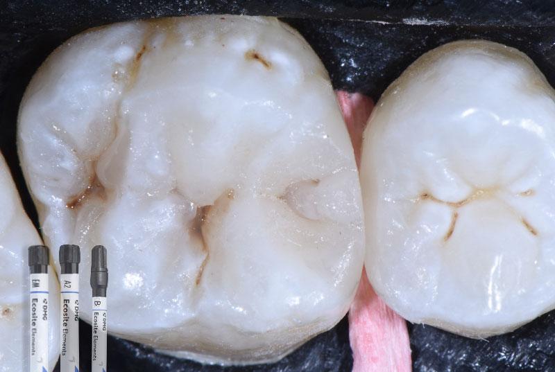 finished composite restoration on upper molar styleitaliano style italiano