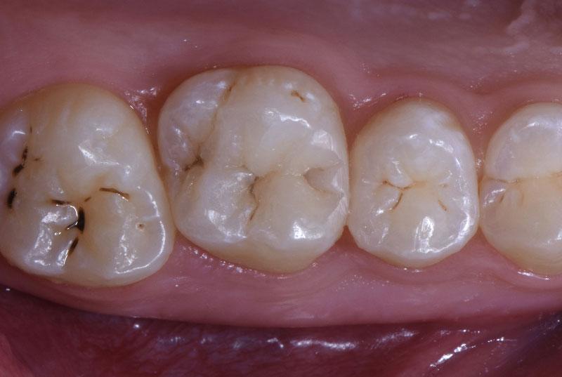 composite restorations on molar and premolar style italiano styleitaliano