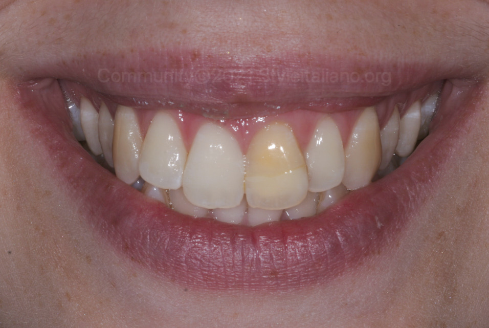 single discolored tooth styleitaliano style italiano community clinical case