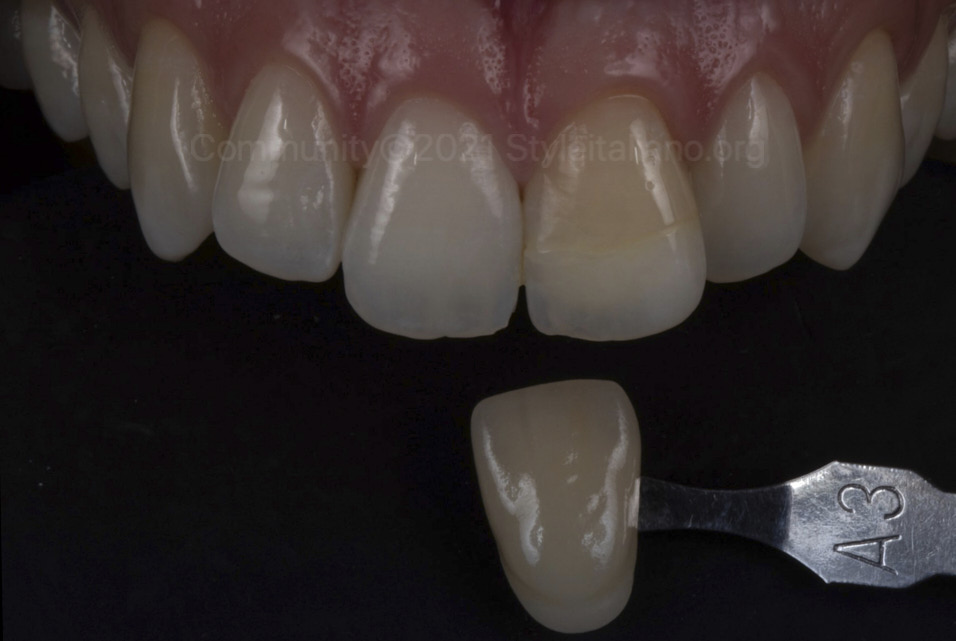 shade matching of discolored incisor styleitaliano style italiano community clinical case