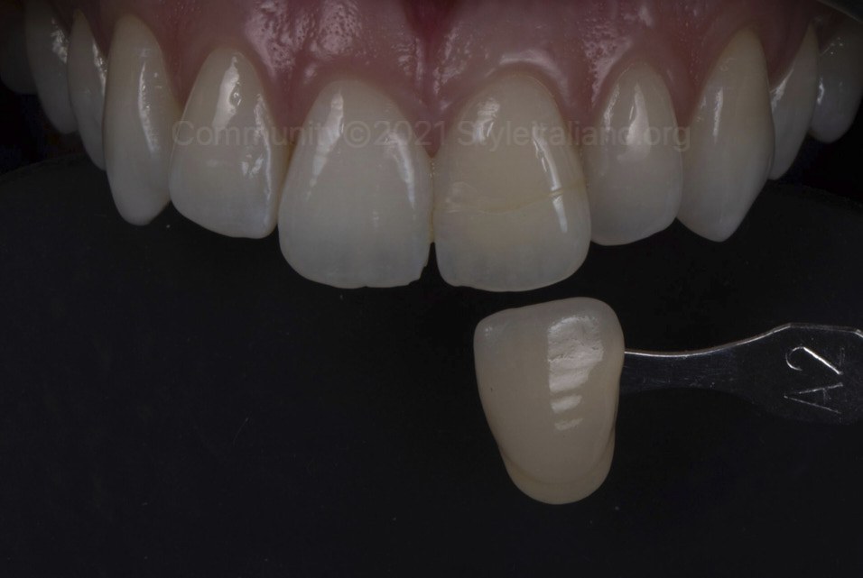 style italiano styleitaliano community clinical case color check of discolored tooth after external bleaching