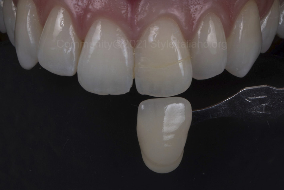 final shade matching after internal and external bleaching styleitaliano style italiano community clinical case