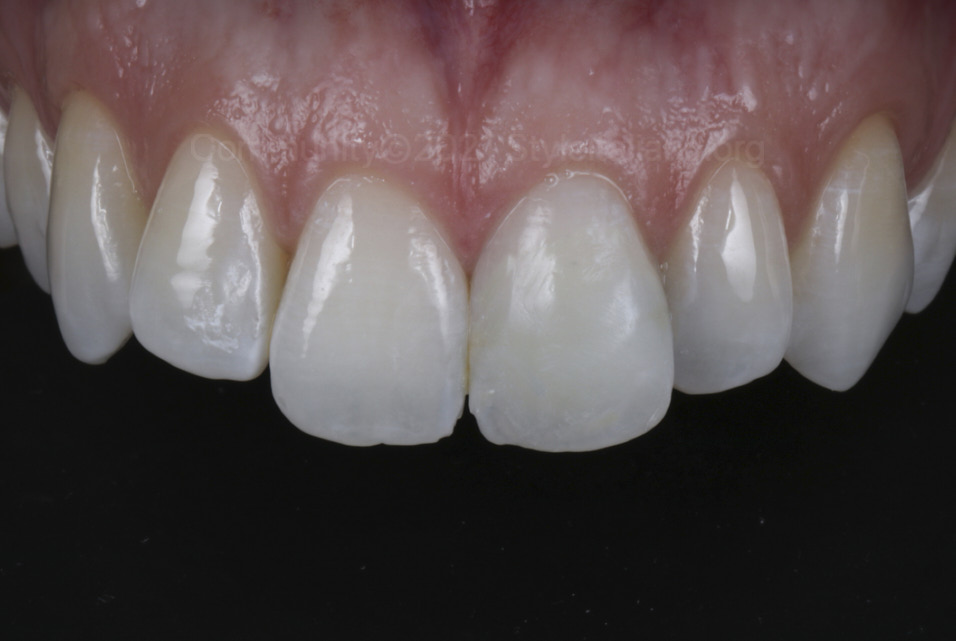 polshed composite veneer on upper left incisor styleitaliano style italiano community clinical case