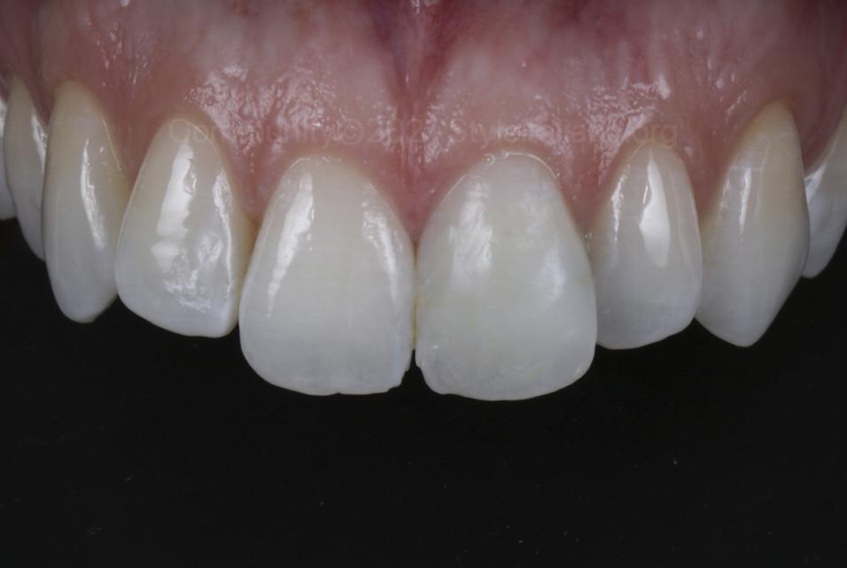 polshed composite veneer on upper left incisor styleitaliano style italiano community clinical case