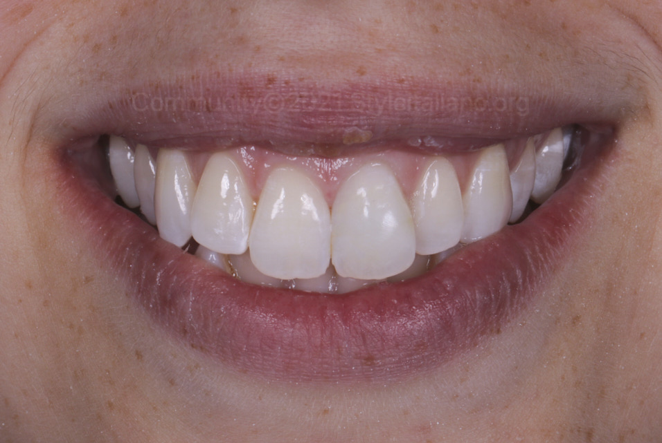 smile of patient after esthetic smile restoration styleitaliano style italiano community clinical case