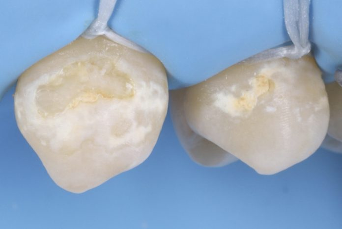 cervical carious lesions at canine and premolar style italiano styleitaliano