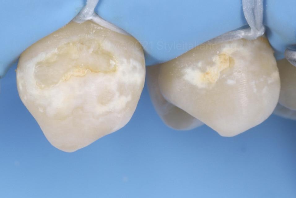 cervical caries styleitaliano style italiano