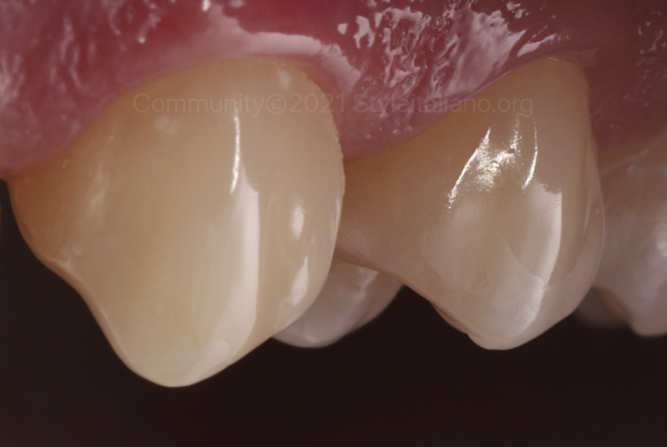 polished and invisible buccal direct restorations styleitaliano style italiano