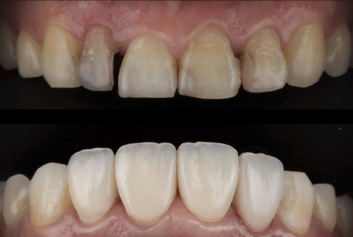 before and after composite indirect veneers style italiano styleitaliano community