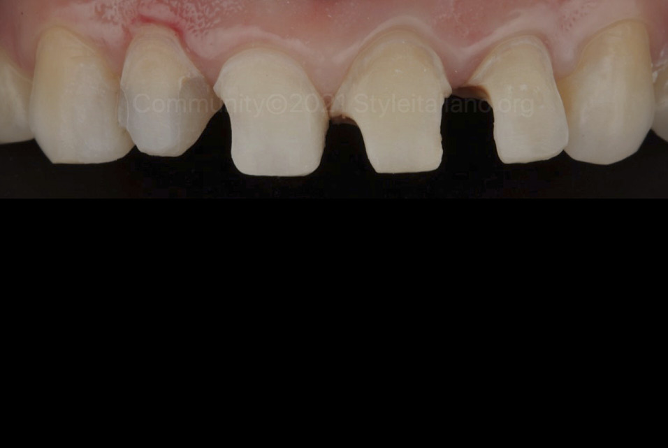 teeth after cleaning caries style italiano styleitaliano community