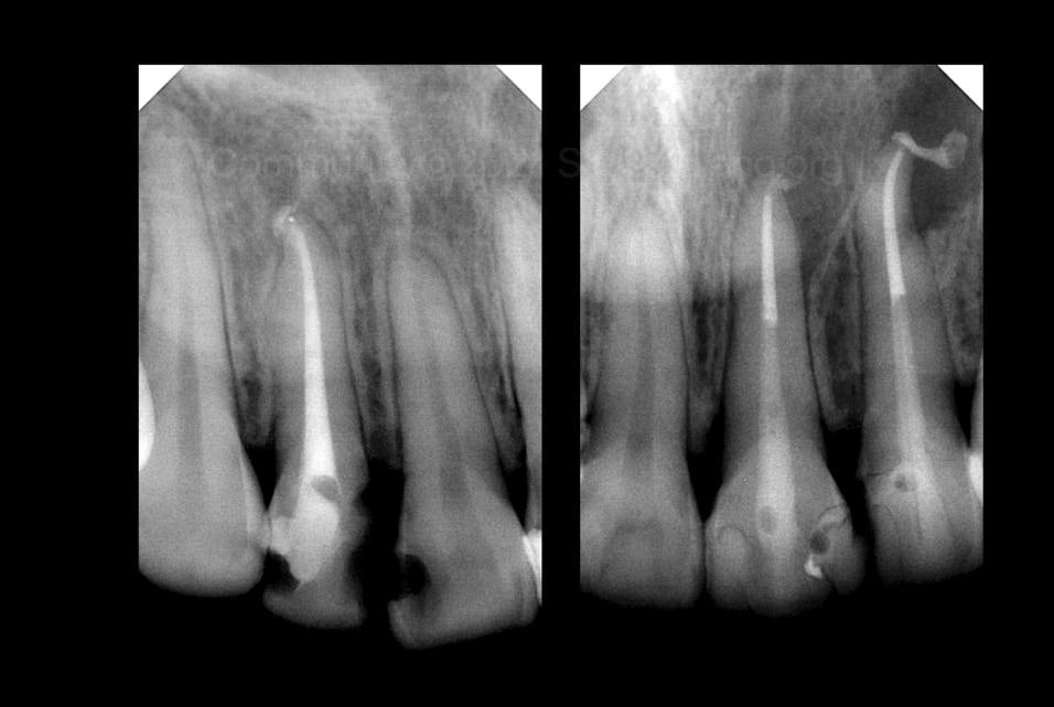 X-rays showing root canal treatments style italiano styleitaliano community
