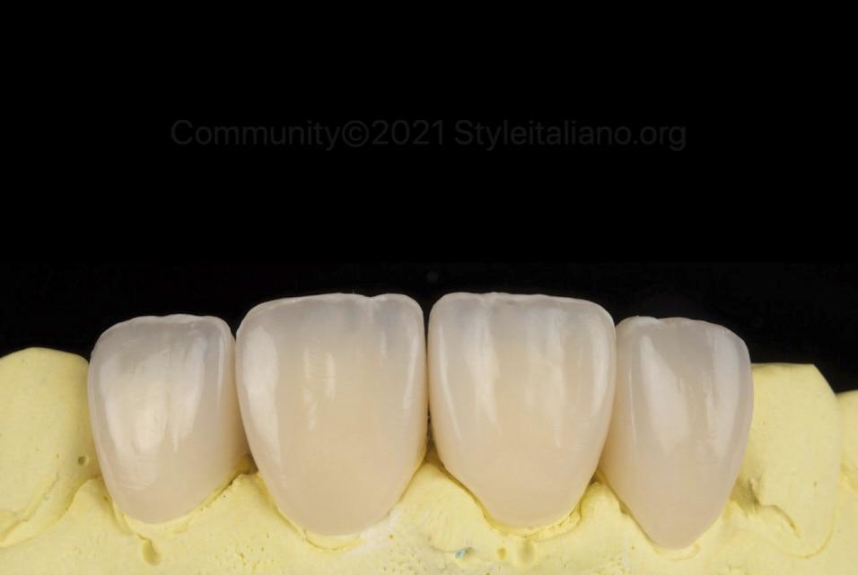 composite veneers and crowns style italiano styleitaliano community