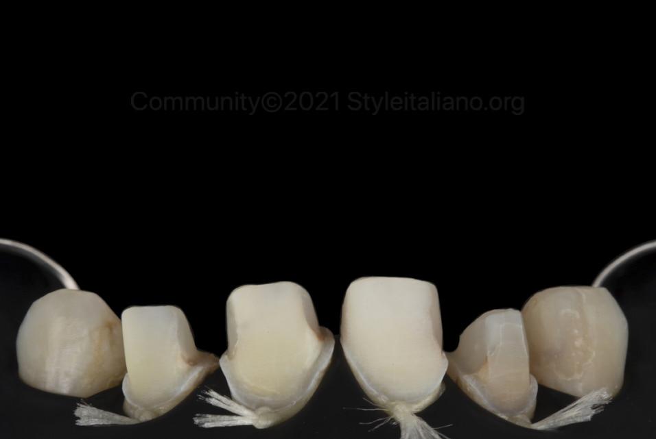 sandblasted prepared tooth abutments style italiano styleitaliano community